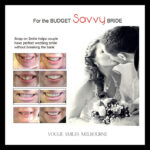 Bridal Smile Makeover
